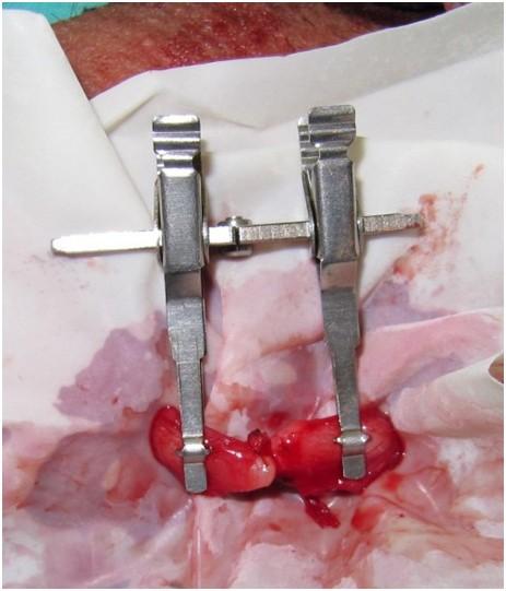 reversão vasectomia