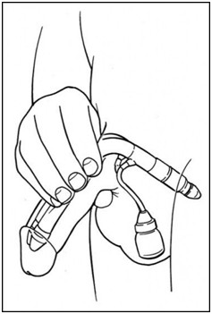 prótese peniana