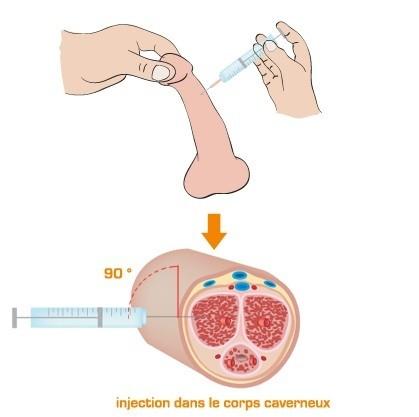 при инъекции лидокаина в член можно продлить половой акт - 8