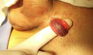 Varico dedo