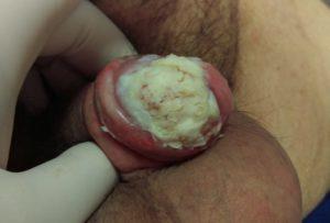 ca de penis 1